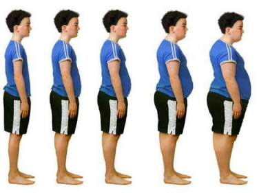 Stages of childhood obesity