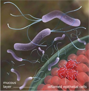 h-pylori-invasion-epithelial-cells-mucous-layer